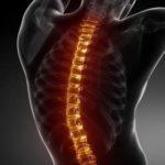 Post Chiropractic